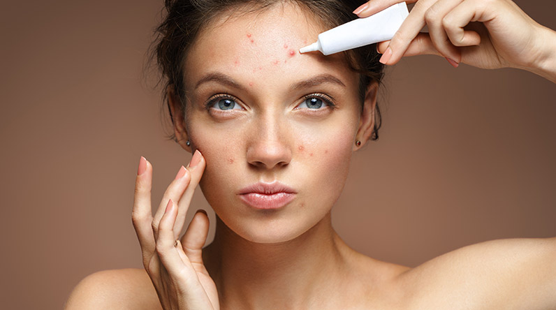 Woman with problem skin / Shutterstock